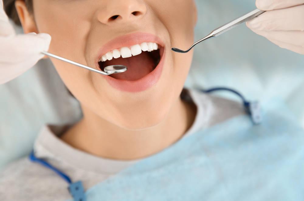 ¿Qué debemos saber sobre el cáncer oral?