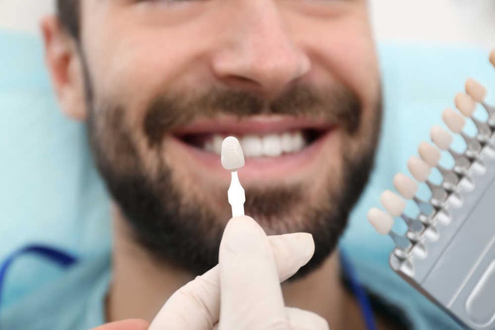 Conoce más sobre la estética dental